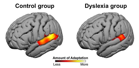 Учени разкриха различия в сензорната преработка при хора с дислексия